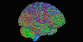 global-tractography