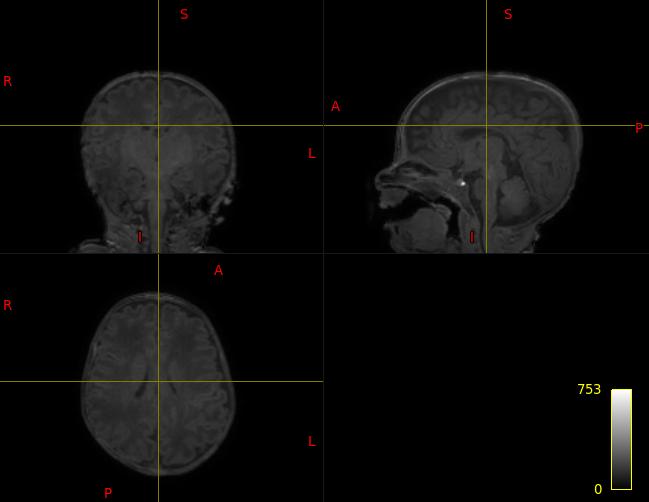 Screenshot from 2020-03-04 17-15-43